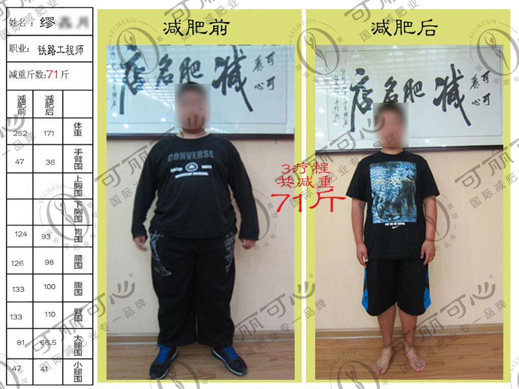 减肥成功的案例 图片合集